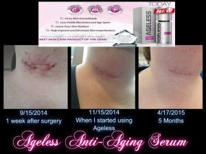 Sara Green Ageless results 4.17.15